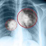Ung thư phổi có di truyền cho thế hệ sau không?