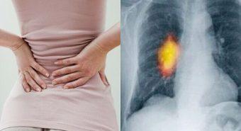 Triệu chứng đau nhức trong ung thư xương di căn