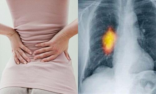 Ung thư xương di căn khiến người bệnh vô cùng đau nhức