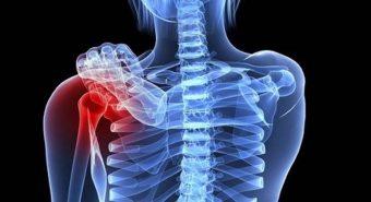 Phòng tránh ung thư xương như thế nào?