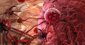chiến thắng trước ung thư
