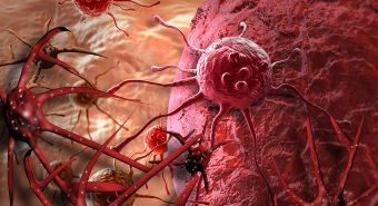 Bí quyết của người phụ nữ hơn 20 năm sống chung với ung thư di căn