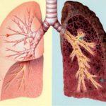 Vì sao không hút thuốc vẫn bị bệnh ung thư phổi?