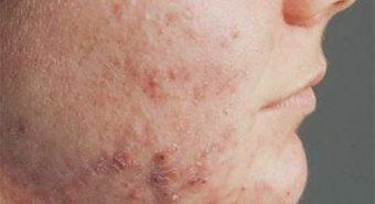 Bệnh viêm da cơ địa có điều trị khỏi không?