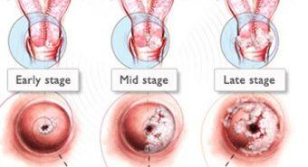 Ðiều trị bệnh viêm lộ tuyến cổ tử cung