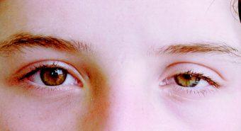 Xuất hiện những triệu chứng này, rất có thể bạn đã bị ung thư mắt