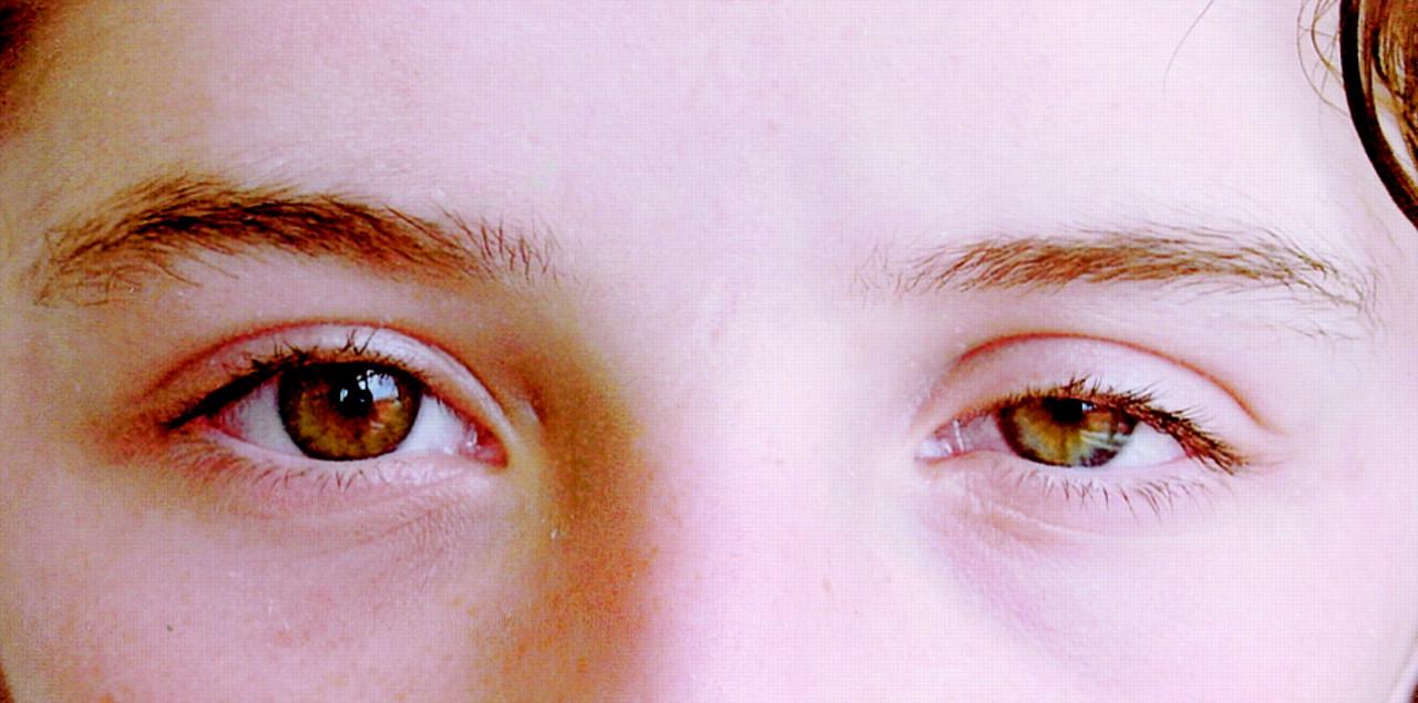 Triệu chứng của ung thư mắt thường không rõ ràng, thậm chí có thể gây nhầm lẫn với những bệnh khác về mắt